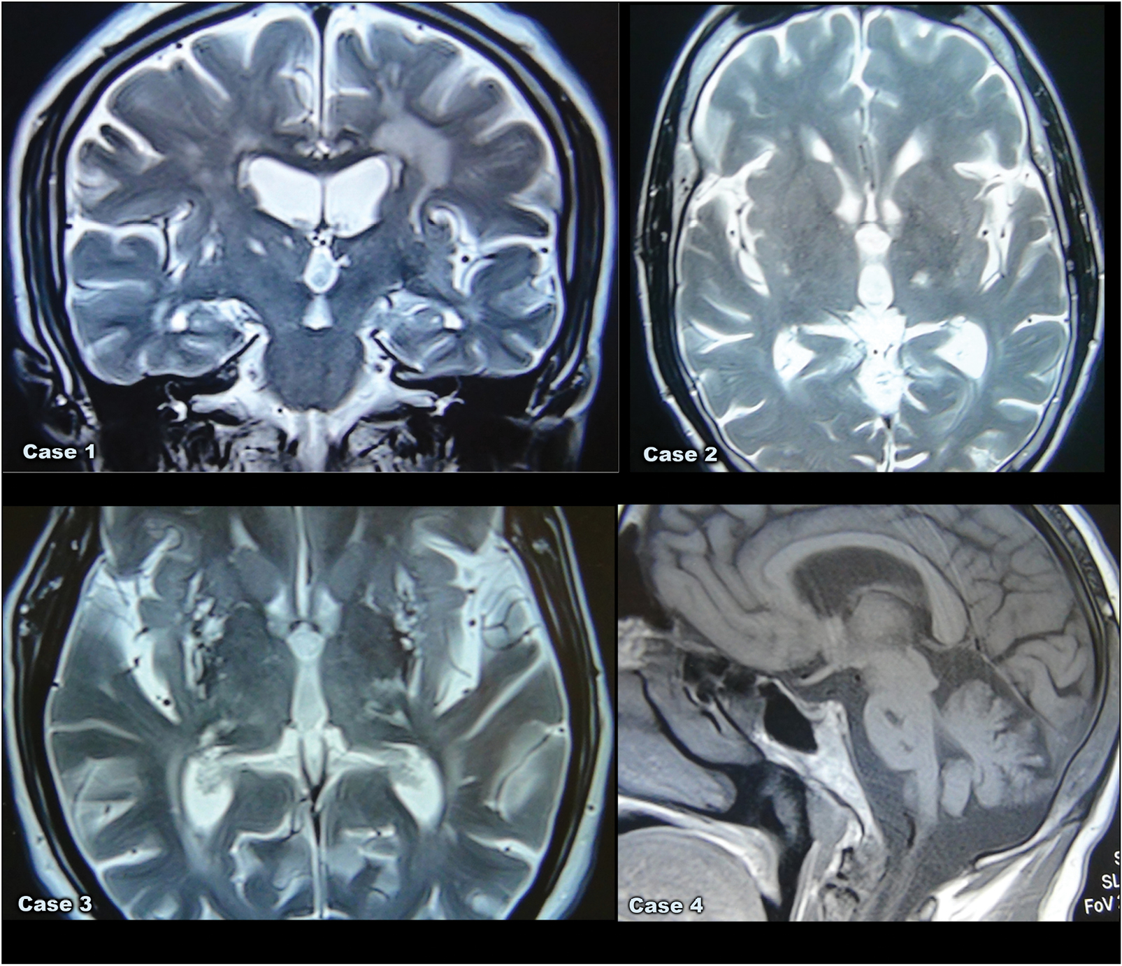 Figure 1: (A) Magnetic resonance imaging (MRI) of Case 1 brain, which is a coronal T2-weighted image, shows evidence of lacunar hyperintense signals in both basal ganglia (caudate/lentiform nucleus). (B) MRI of Case 2 brain is an axial T2-weighted image showing evidence of hyperintense signal in the left thalamus. (C) MRI of Case 3 brain is an axial T2-weighted image revealing evidence of hyperintense signals, involving both gangliocapsular regions with peripheral blooming. Lacunar hyperintense signals are seen in both the thalami as well. (D) MRI of Case 4 brain is a sagittal T1-weighted image of the pons showing two lacunar infarcts